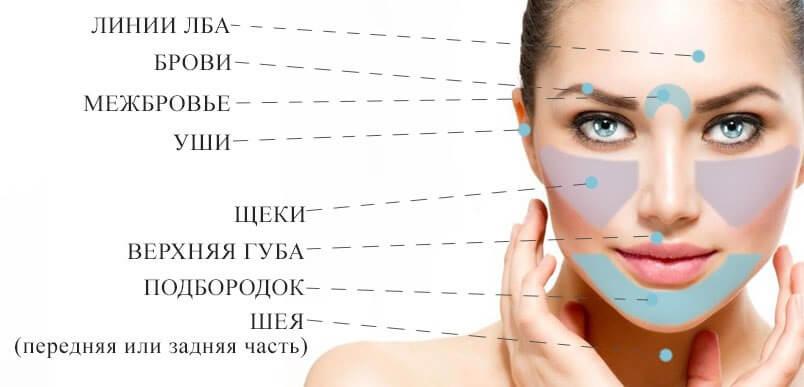 депиляция на лице щеки
